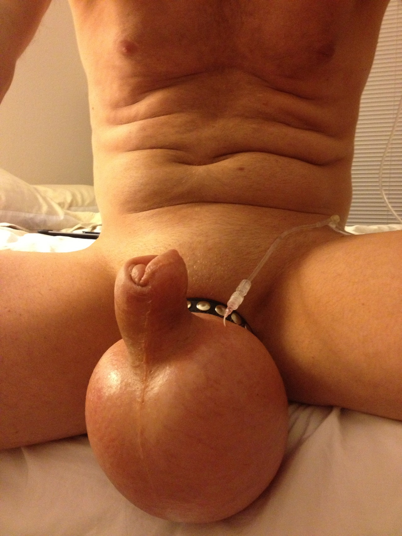 Weird Saline Injected Cock And Balls Porned Up